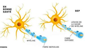 La sclérose en plaques, une maladie neurodégénérative